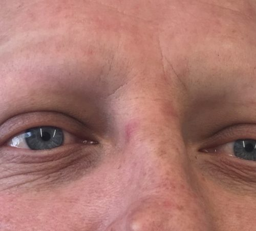 male-eyebrows-before-treatment-1030x642